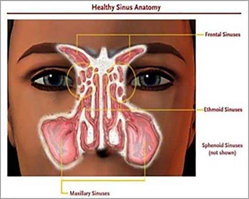 جراحی سینوس