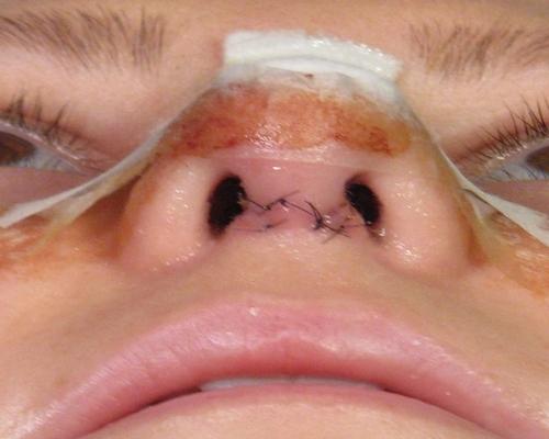 جای بخیه و زخم (اسکار) بعد از عمل بینی