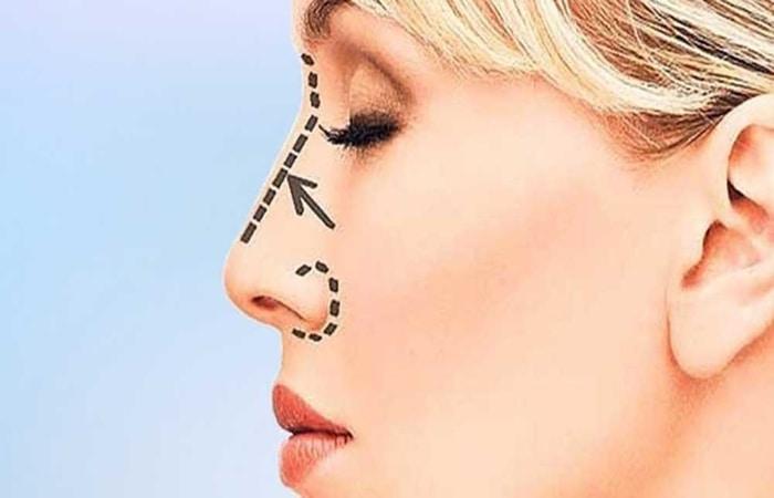 تغییر صدا پس از جراحی بینی