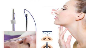 عمل زیبایی بینی با نخ یا لیزر؟