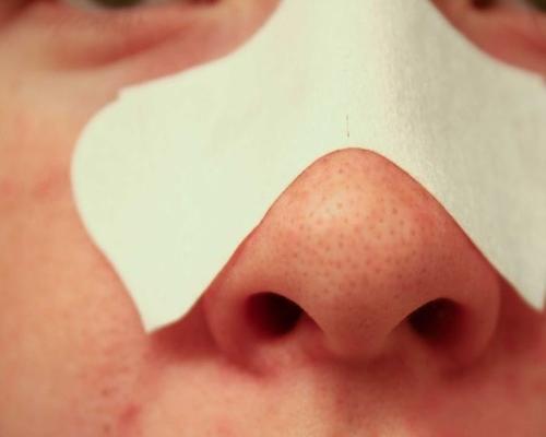 علت چرب شدن بینی