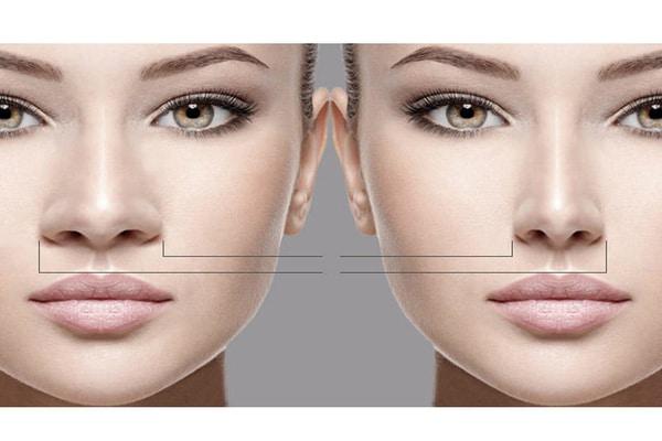 عمل بینی بدون جراحی بینی