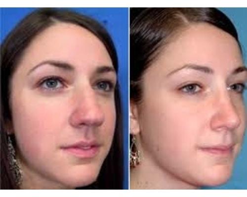 تفاوت عمل بینی های گوشتی با استخوانی