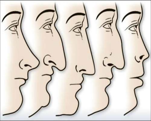 عوامل تاثیرگذار بر شکل بینی