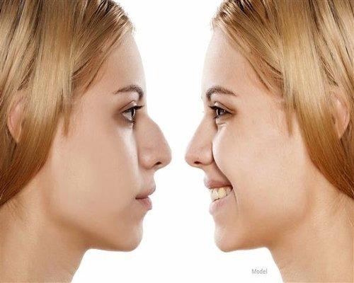 بهترین راه درمان بینی های گوشتی و استخوانی