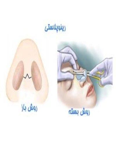 روش های نوین جراحی بینی