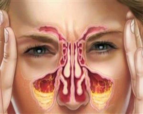 درمان پولیپ و انحراف بینی