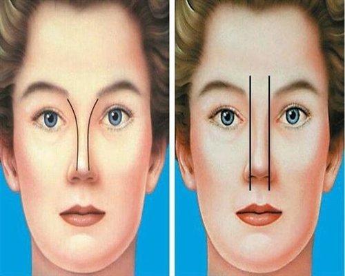 آیا عمل بینی با عوارض همراه است؟